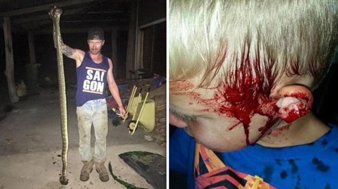 В Австралії величезний пітон напав на 6-річного хлопчика